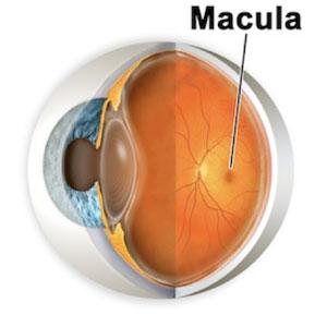 dry verses wet macular degeneration