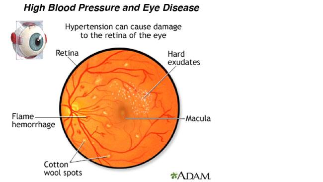 causes of severe ocular hypertension