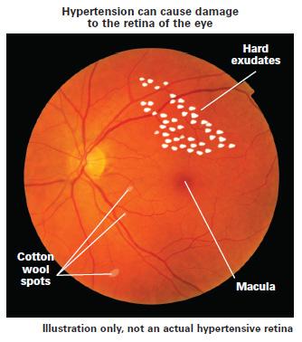 lesson ocular effects of hypertension rh 2020mag com